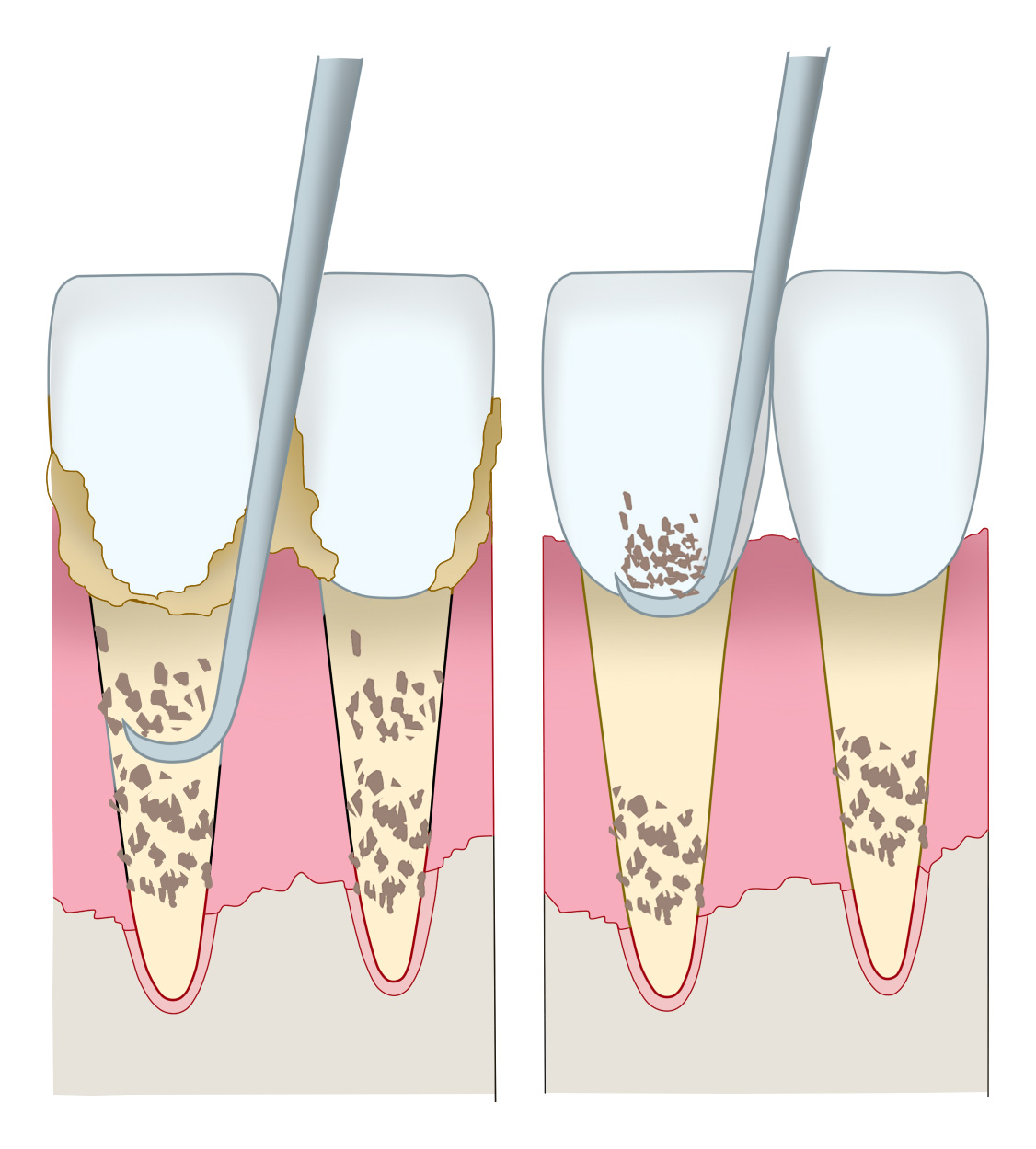 歯周病治療の痛み