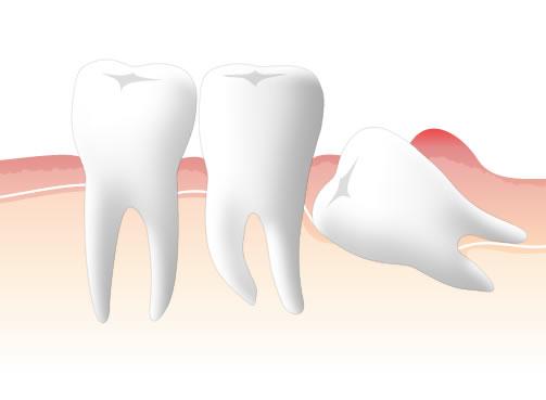 親知らずのあたりに歯周病が見られる